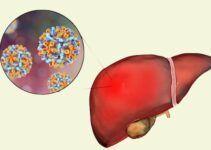 Como Prevenir a Hepatites A, B e C Pinterest